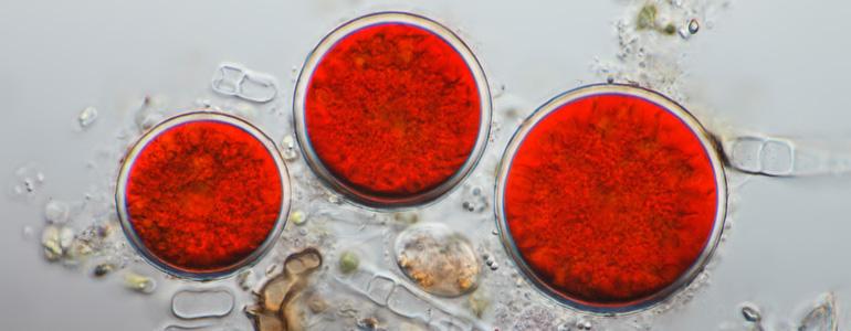 Astaxanrhin Microalge - Astaxanthin Wirkung, Anwendung und Erfahrungen